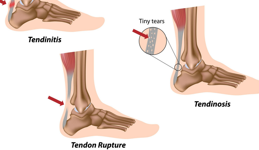 Tennis Injury Prevention: Three Signs of an Achilles Tendon Injury ...